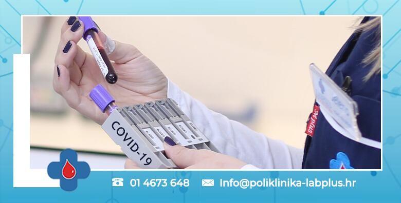Serolosko testiranje na COVID 19 u Poliklinici LabPlus  bez najave i prethodne pripreme uz gotov nalaz isti dan za 150 kn